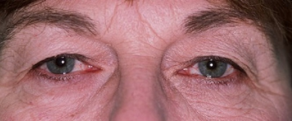 Eyelid Rejuvenating Surgery in Milwaukee - Before