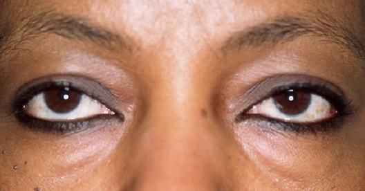 Patient Before Lower Eyelid Blepharoplasty