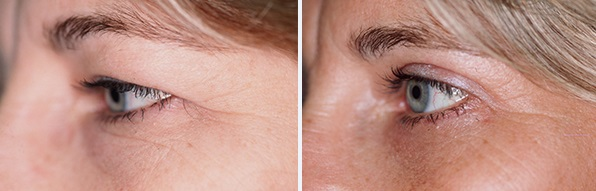 Milwaukee Woman Before and After Blepharoplasty