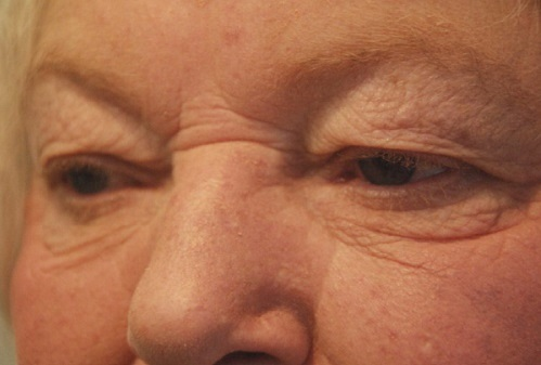Older Woman Before Eyelid Surgery