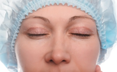 Patient Before Eyelid Surgery