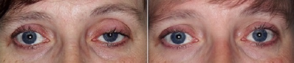 Milwaukee Patient Before and After Ptosis Surgery