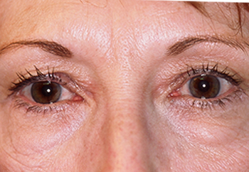 Before Cosmetic Eye Surgery for Milwaukee Women with Droopy Eyelids