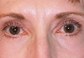 Results from Cosmetic Eye Surgery for Milwaukee Patient with Droop Eyelids