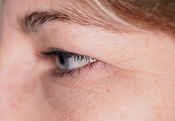 Before Cosmetic Eye Surgery for Wisconsin Women with Baggy Eyelids