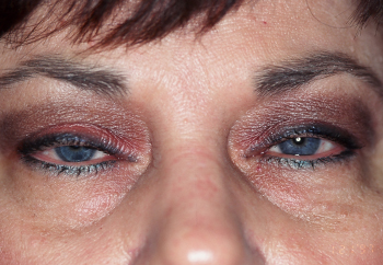 Before Eyelid Lift Surgery for Milwaukee Women
