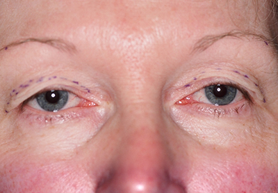 Before Eye Plastic Surgery for Waukesha Women with Droopy Eyelids