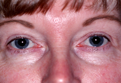 Results of a Waukesha Patient's Cosmetic Eye Surgery